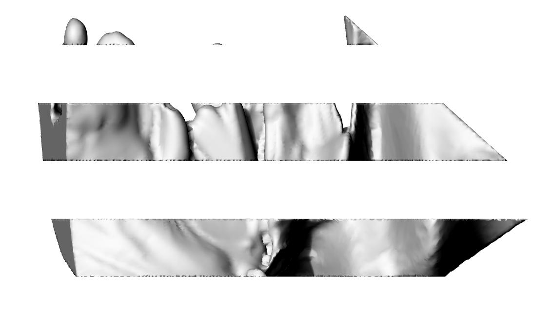 reference slice 5